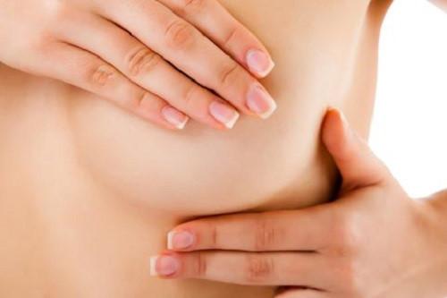 Khối u ở vú hoặc gần vùng nách cảnh báo ung thư vú