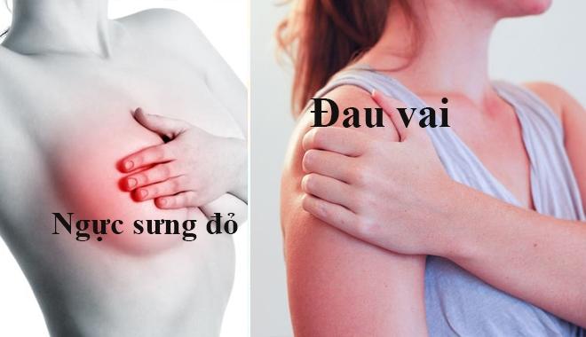 Ngực sưng đỏ, đau vai cảnh báo ung thư vú.