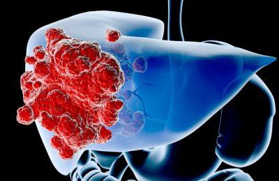 Các dấu hiệu của ung thư gan thường biểu hiện khá muộn nên rất khó phát hiện.