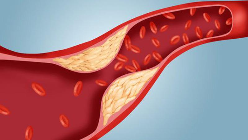 Chỉ số cholesterol trong xét nghiệm máu.