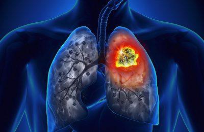 Điều tiết và cẩn thận trong thói quen ăn uống là một trong những cách giảm thiểu ung thư dạ dày